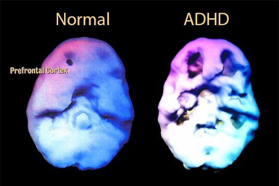 normal-adhd-brain